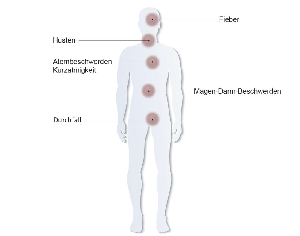 Das Coronavirus verursacht grippale Symptome wie Husten oder Atembeschwerden. Oft ist eine nicht behandelbare Lungenentzündung erkennbar, die potenziell lebensbedrohlich ist. Das Coronavirus verursacht grippale Symptome wie Husten oder Atembeschwerden. Oft ist eine nicht behandelbare Lungenentzündung erkennbar, die potenziell lebensbedrohlich ist. Abbildung: Hugentobler