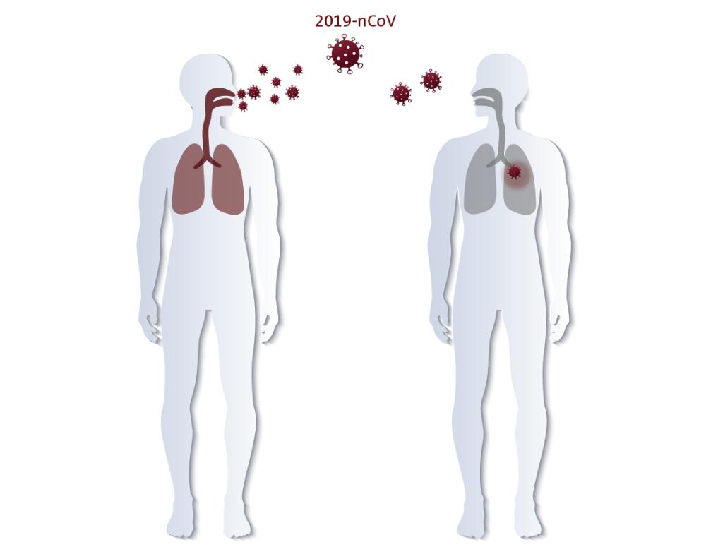 Die Infektion mit dem aktuellen Coronavirus verbreitet sich räumlich und zeitlich ungewöhnlich schnell. Sie erfolgt sowohl über die Luft als auch physischen Kontakt. Abbildung: Hugentobler